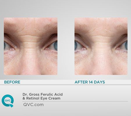 The True Beauty Of Ferulic Retinol Eye Cream Blogs Forums