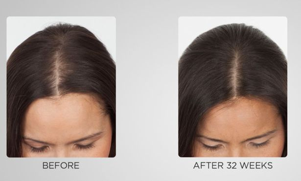 Keranique 5 Piece 60 Day Regrowth And Styling Kit Qvc Com