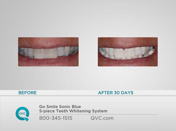 Go Smile Sonic Blue 5 Pc Teeth Whitening System Qvc Com