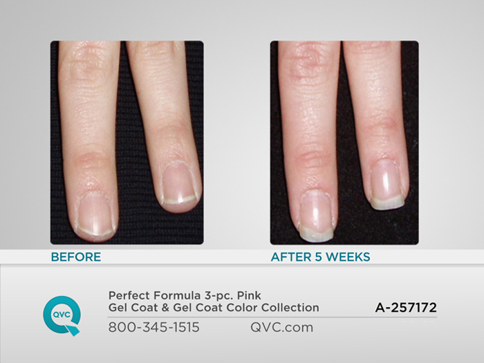 Perfect Formula 3 Pc Pink Gel Coat Color Collection Page 1 Qvc