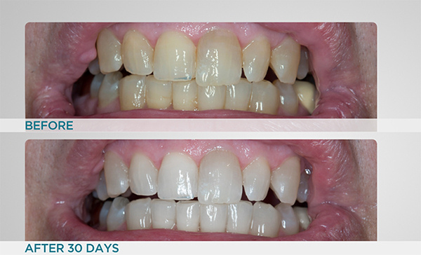 Supersmile Super Size Teeth Whitening Toothpaste System