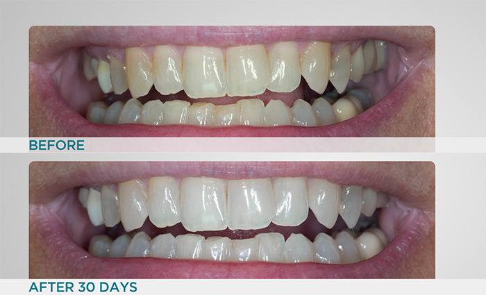 Supersmile Professional Teeth Whitening System Auto
