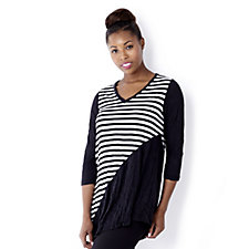Yong Kim Crinkle V Neck Stripe & Plain Tunic with Asymmetric Hem