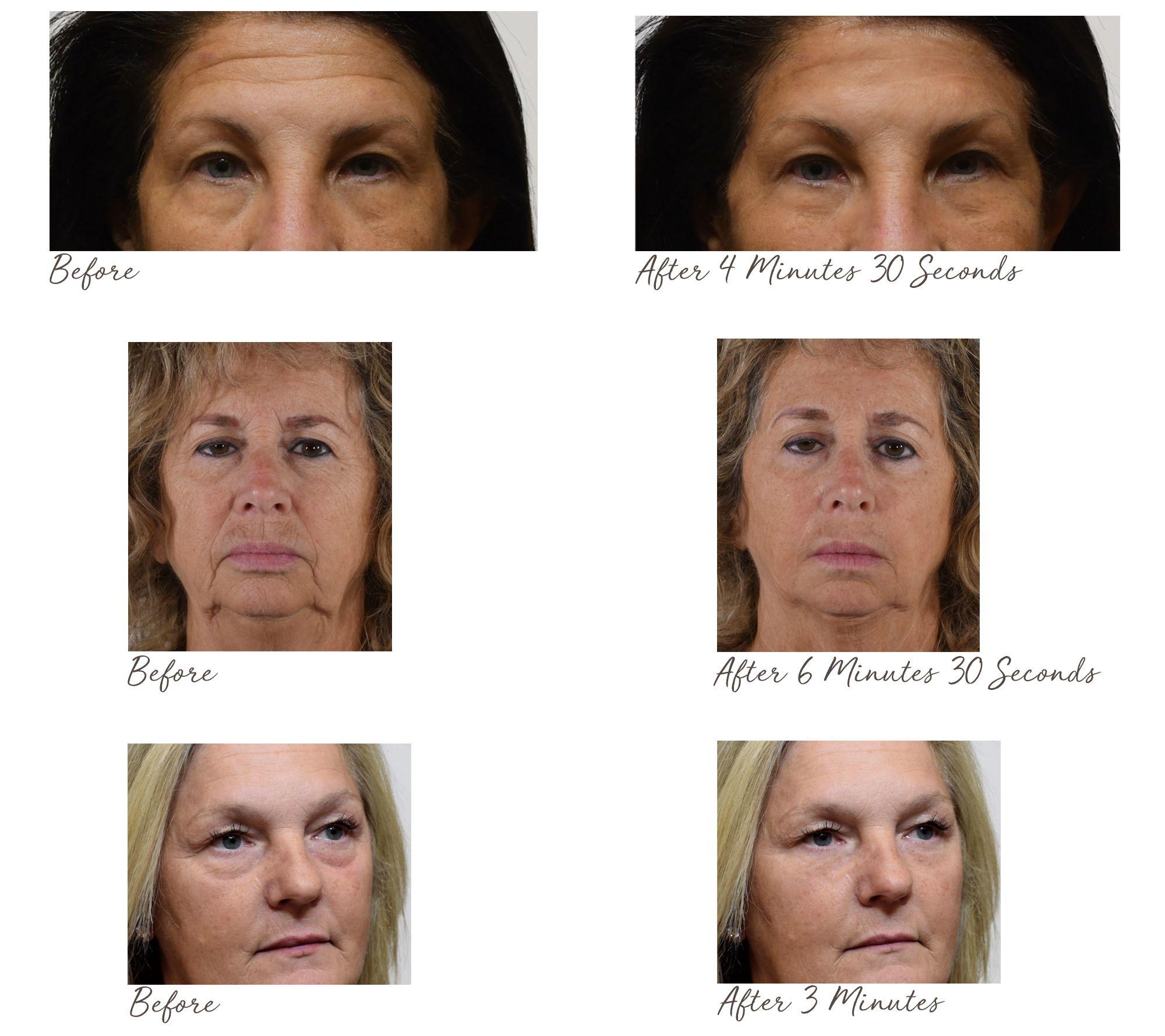 Plexaderm Skincare Rapid Reduction Cream Plus Duo — QVC com