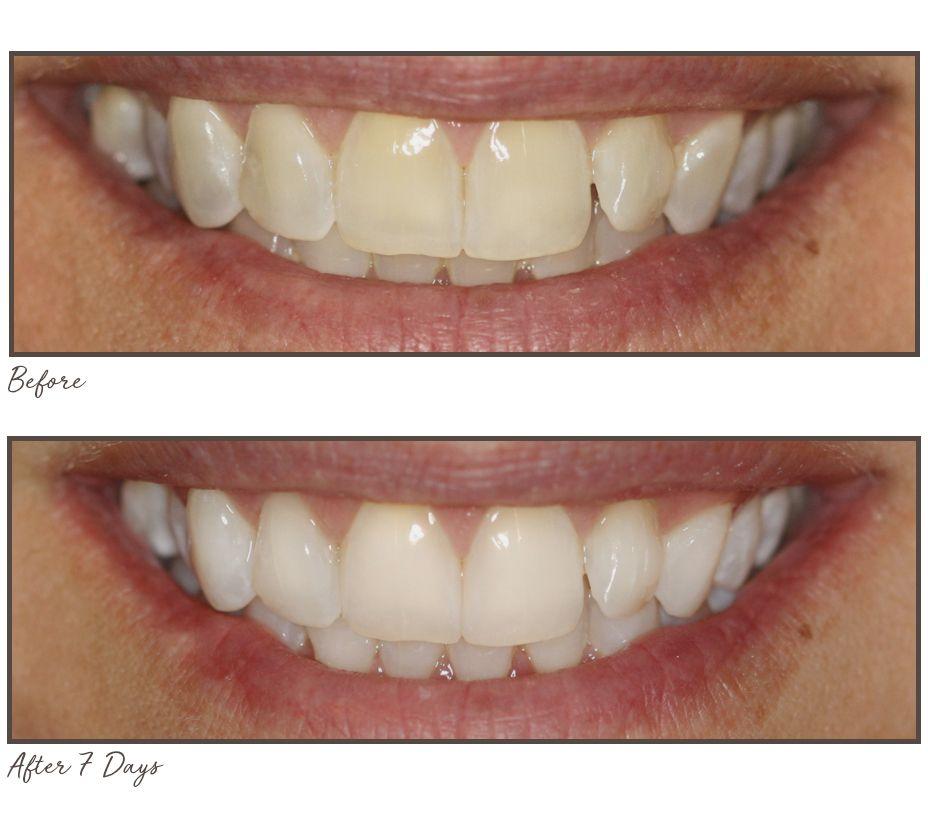Smileactives Set Of 3 Super Size Teeth Whitening Pens Qvc Com