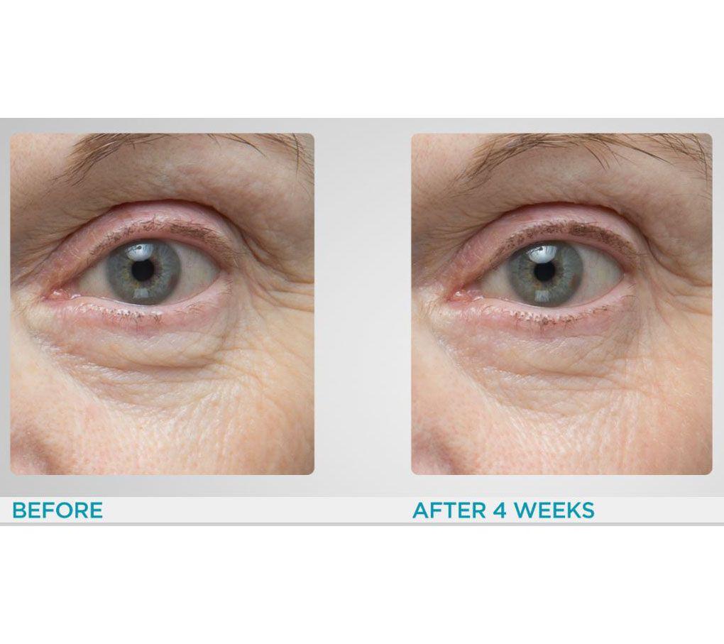 Elemis Pro Collagen Eye Renewal Cream Qvc Com