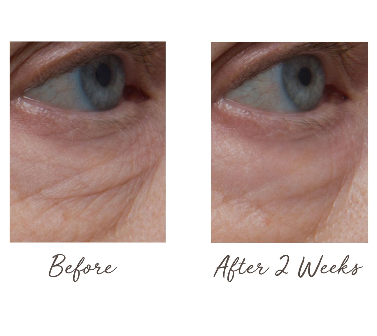 Perricone Md Cold Plasma Plus Advanced Eye Cream Qvc Com
