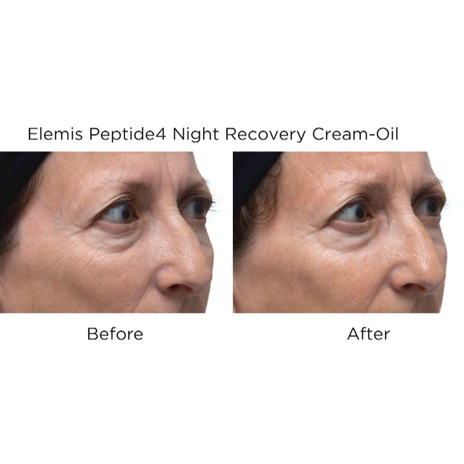Skin Care New Fashion Elemis Peptide 4 Night Recovery Cream Oil 10ml